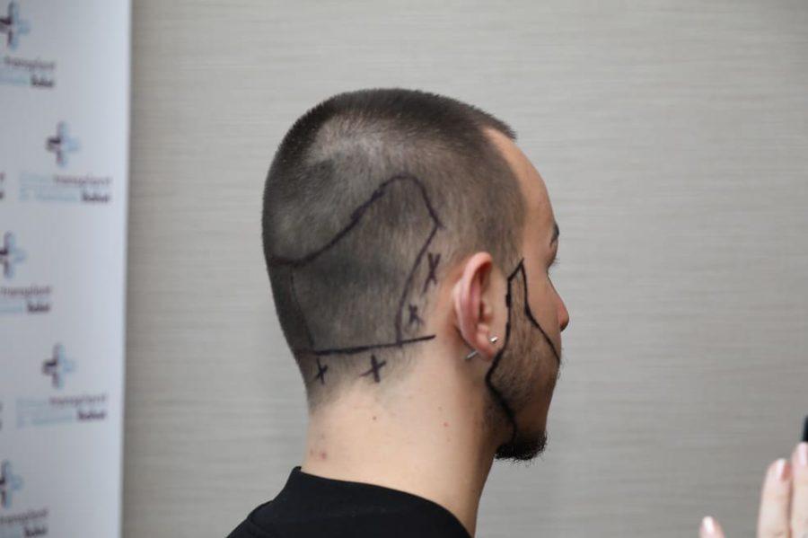 la zona donatrice del trapianto di capelli in un paziente