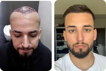 Giovane trapianto di capelli uomo prima e dopo per l'ispessimento dei capelli
