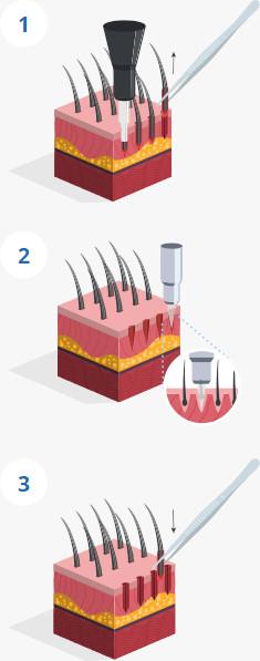 Infografica spiegando le fasi del trapianto di capelli percutanea