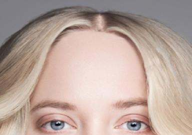 La donna con la fronte alta prima di un trapianto di capelli