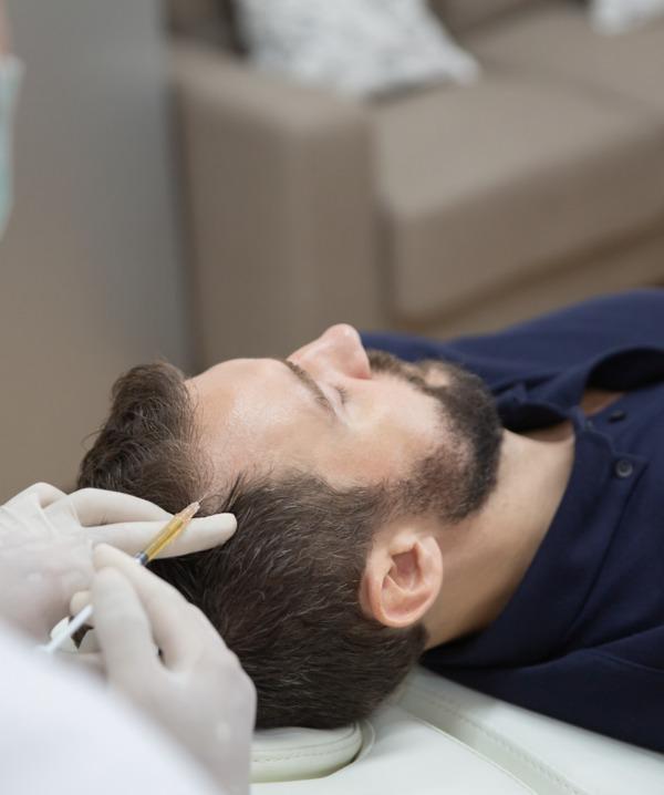 L'uomo preparando per un trapianto di capelli in Turchia