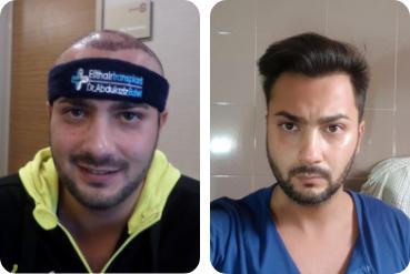 Paziente di sesso maschile trattamento dei capelli proprio prima dopo