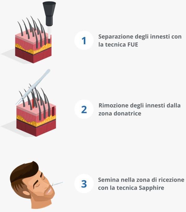 Infografica che mostra il processo di trapianto barba