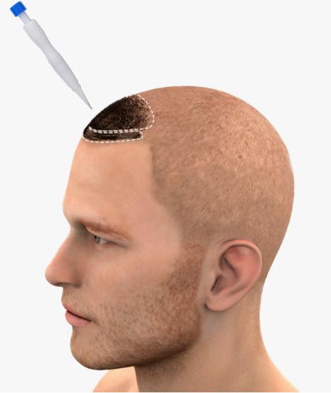 Un uomo con una testa di rasatura e una spiegazione del trapianto di capelli DHI sulla zona frontale