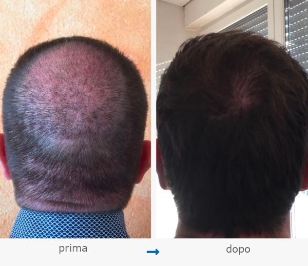 Una prima e dopo l'immagine di un trapianto di capelli nella zona della corona