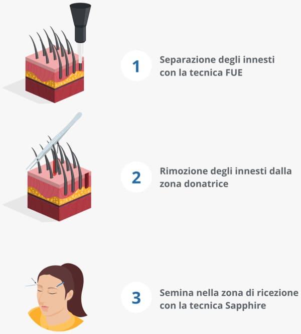 Un'infografica che spiega la procedura di trapianto di sopracciglia