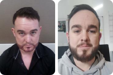 trapianto di capelli del paziente sulla barba prima e dopo