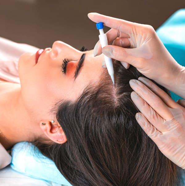 il paziente elithair durante il suo trapianto di capelli DHI