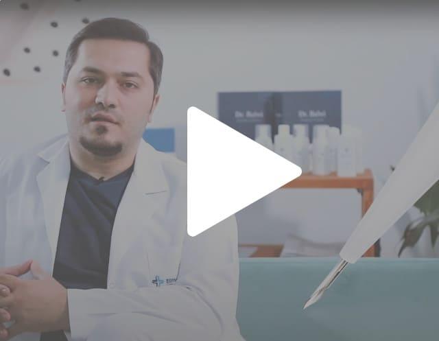 il dottor Balwi spiega il funzionamento della tecnica di trapianto di capelli SDHI