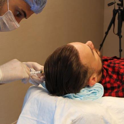Quali sono i benefici del trattamento PRP?