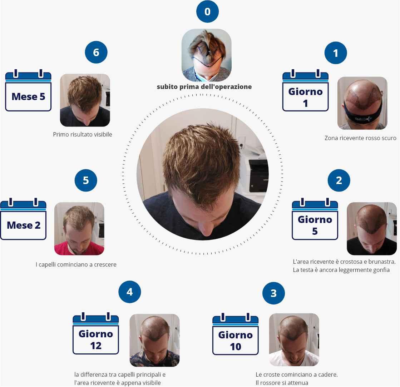 infografica che spiega quanto tempo dure il processo di guarigione dopo il trapianto di capelli