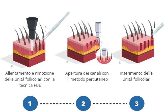 infografica che mostra il processo di trapianto di capelli percutaneo