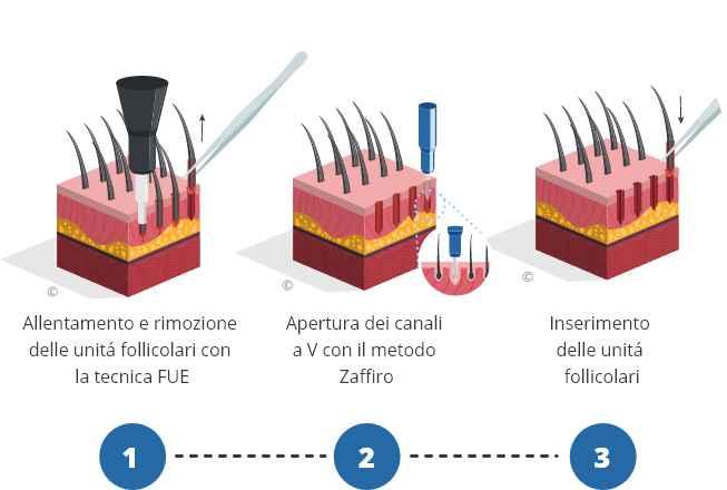 infografica che mostra il processo di trapianto di capelli zaffiro