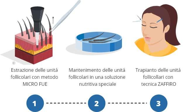 infografica che mostra il processo di trapianto di sopracciglia