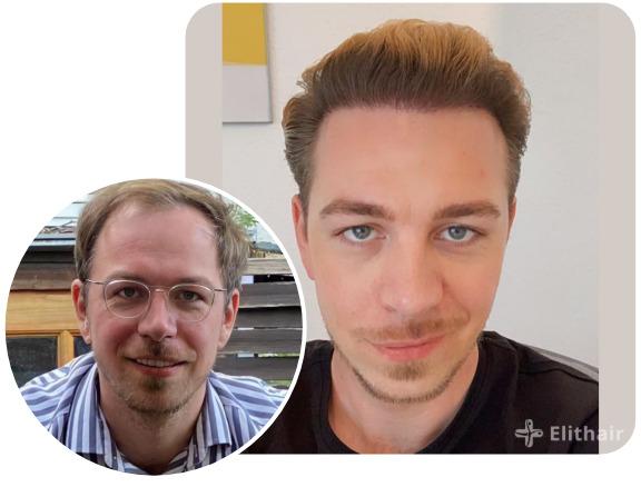 paziente elithair tecnica DHI di trapianto di capelli con 4850 innesti
