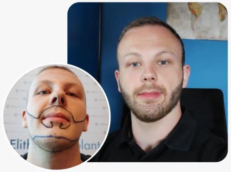 paziente elithair con un trapianto di barba con 3250 innesti