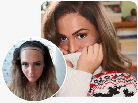paziente elithair che ha effettuato 2200 innesti con il trapianto di capelli per donna