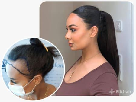 Paziente Elithair dopo un trapianto di capelli per donna da 3200 innesti