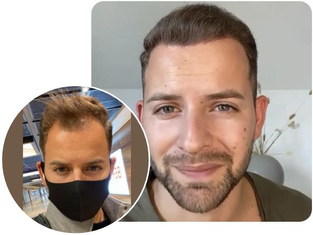 foto del prima e dopo con il paziente che ha effettuato un trattamento NEO FUE con 4200 innesti