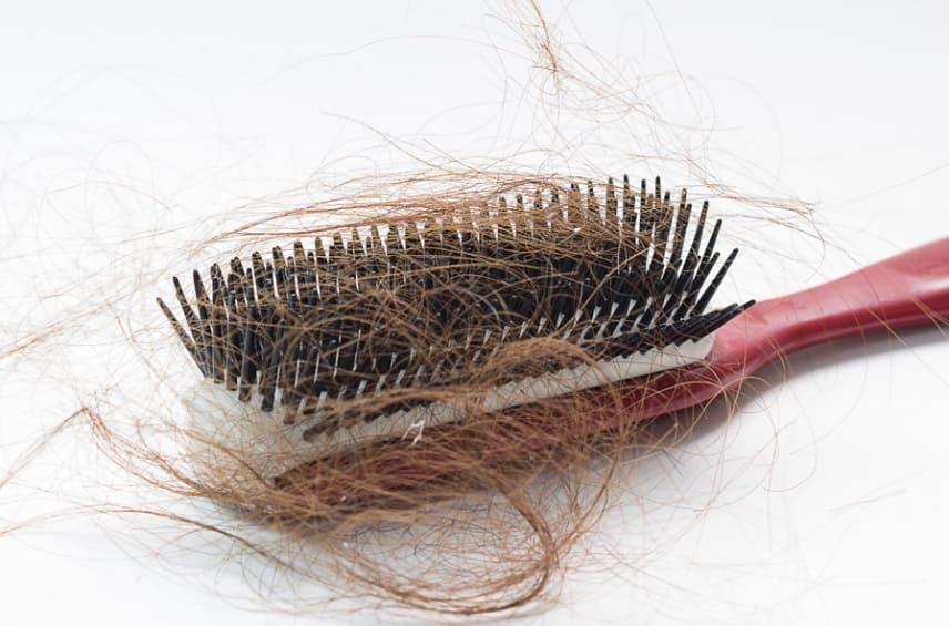 quais sao os tipos de perda de cabelo