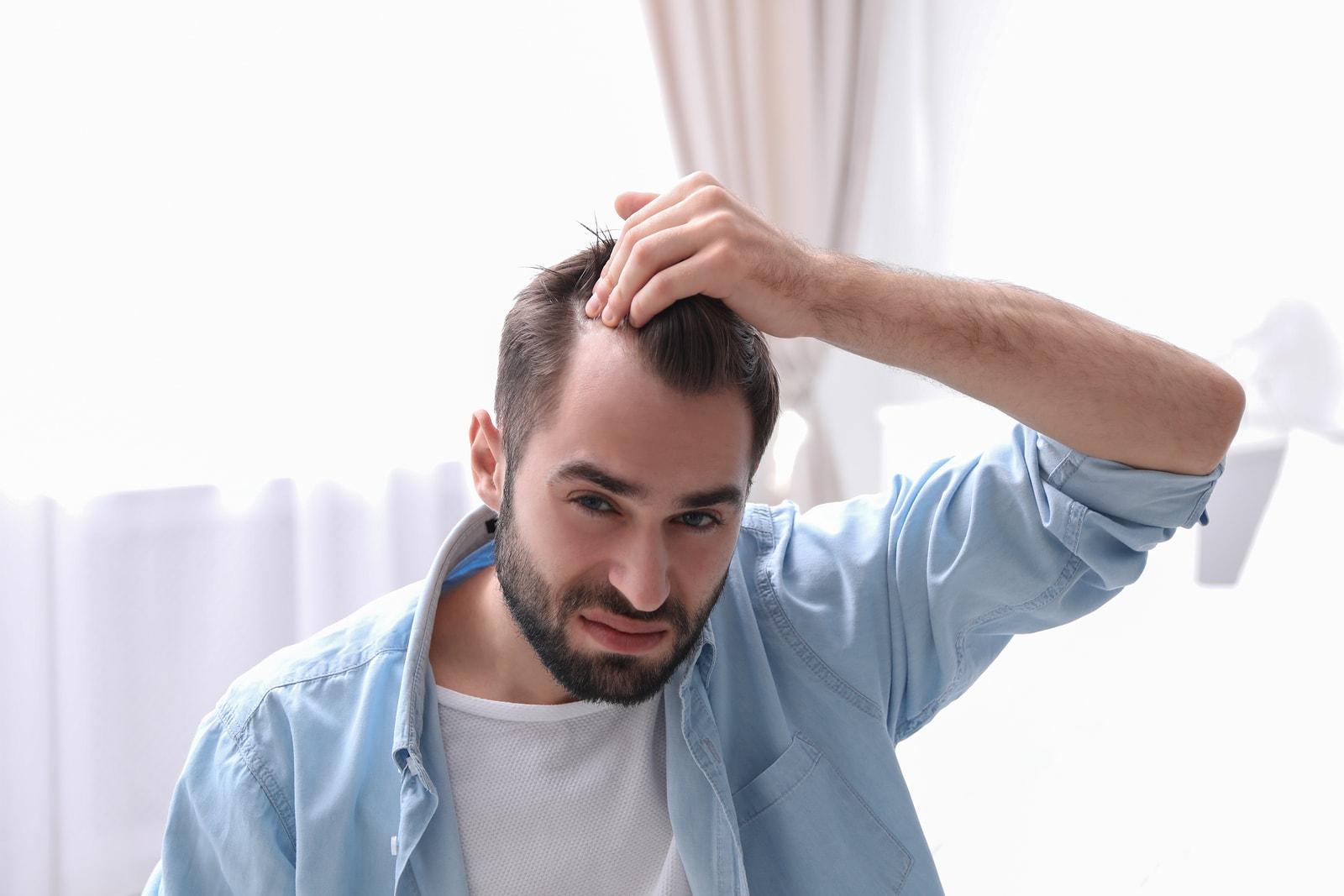 Quando usar cabelo sintético para um transplante capilar - cabelo masculino com entradads