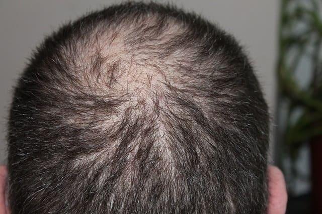 alopecia androgenética nos homens