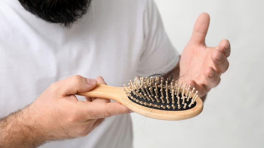 O que é a alopecia androgenética