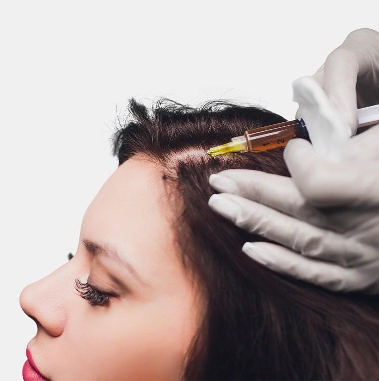 Donna che riceve un'iniezione prima del trattamento di ripristino dei capelli
