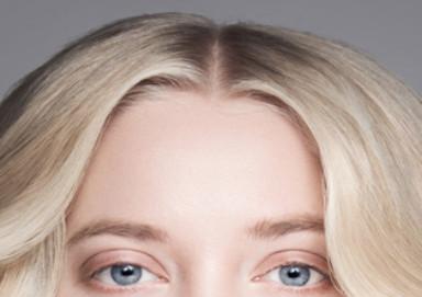 Mulher com uma linha fina espessura depois de um transplante de cabelo bem sucedido para as mulheres