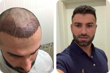 Paciente do sexo masculino antes e após o transplante próprio cabelo para testa alta