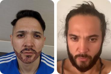 Paciente do sexo masculino com o transplante de cabelo própria sobre a barba antes e depois