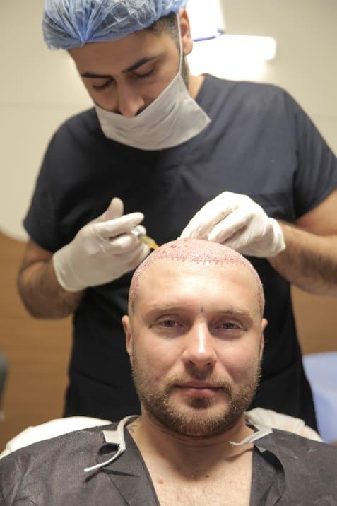 Scopri il trattamento PRP per dare ai vostri capelli una spinta!