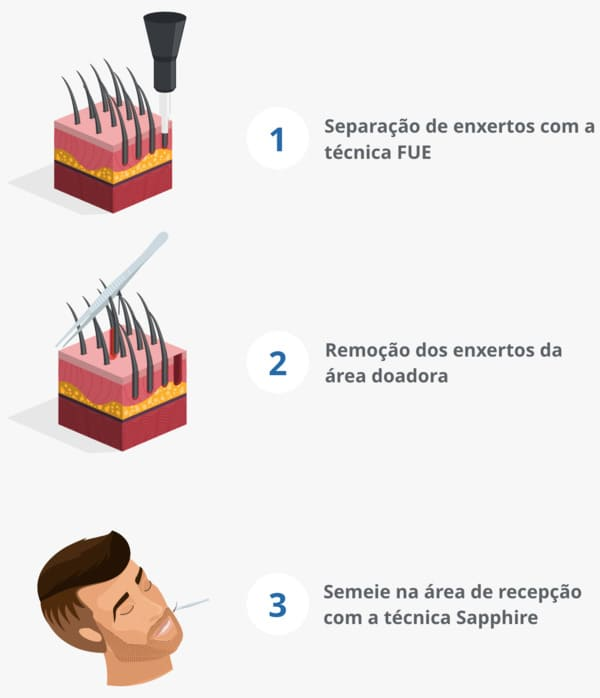 Infográfico mostrando o processo de transplante de barba