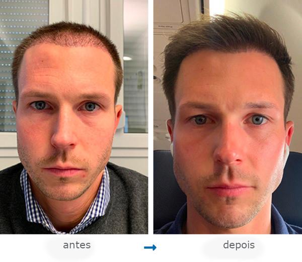 Um Elithair paciente antes e após seu transplante de cabelo