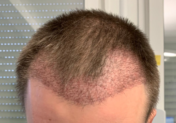 Um close-up da equipa o cabeça algumas semanas após um transplante de cabelo DHI