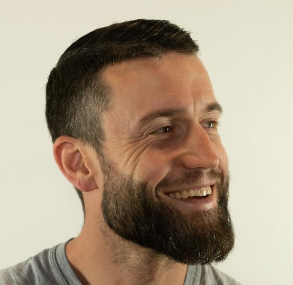 Uma entrevista com um homem após seu transplante de barba