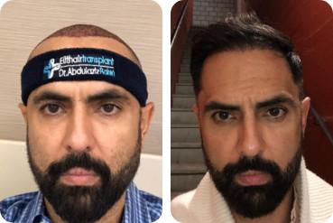Uma imagem de um paciente logo após um transplante de cabelo