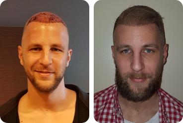 homem paciente Blond próprio transplante de cabelo de 3.500 enxertos testa alta antes depois