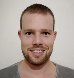 Imagens de um homem com cabelo parcialmente regrown