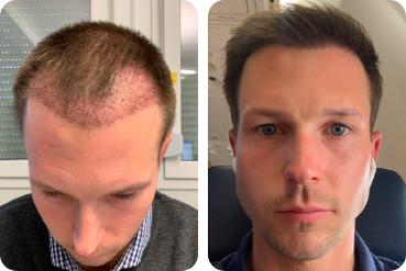 paciente do sexo masculino de cabelos claros com testa alta transplante de cabelo antes depois