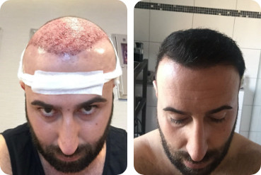 paciente testa alta antes e após o transplante de cabelo com 3.500 enxertos