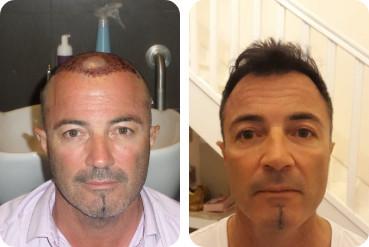 pacientes de meia idade antes após o transplante de cabelo para espessamento