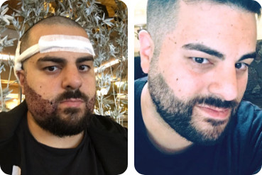 transplante paciente barba jovem antes depois