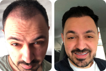 tratamento do cabelo do paciente do sexo masculino para o cabelo espesso antes e depois da comparação