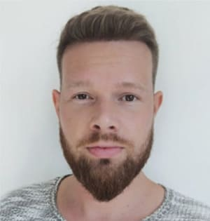 Homem depois de um transplante de cabelo na Turquia