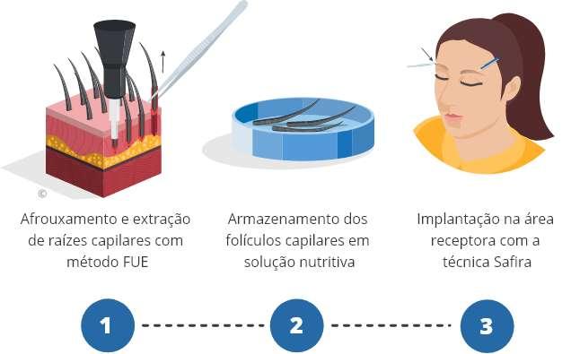 Infográfico do processo de um transplante de sobrancelha
