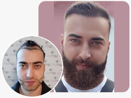 Paciente Elithair com um Transplante de barba com 4250 folículos