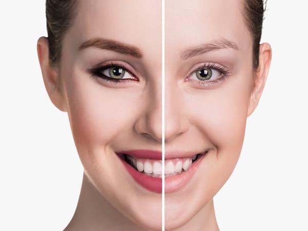 foto mostrando o Antes e Depois de um transplante de sobrancelha na Elithair