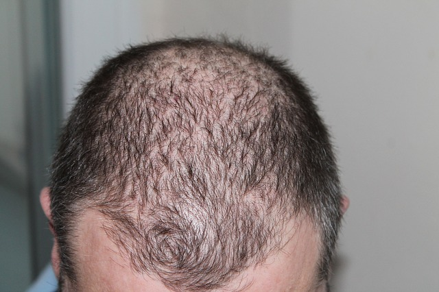 dht próstata y cabello en líneas