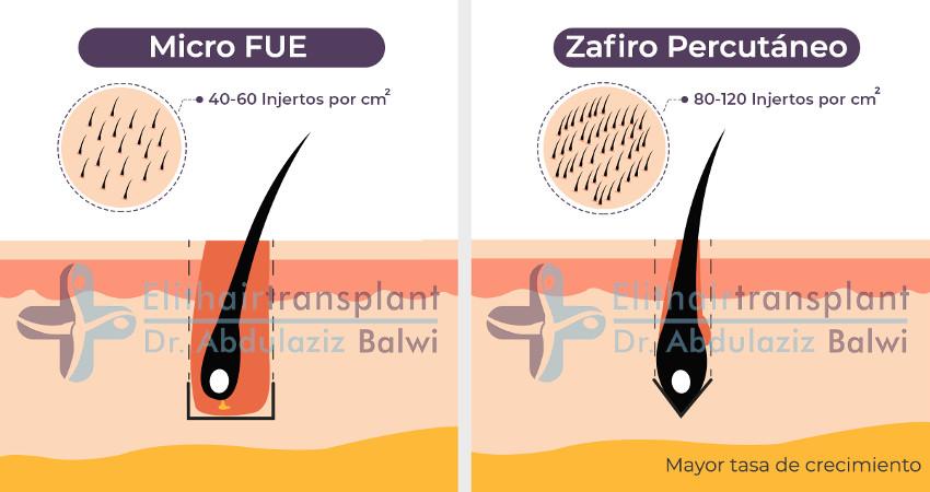 Trasplante Capilar Zafiro